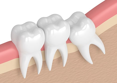 Wisdom Teeth Extraction And Oral Surgery