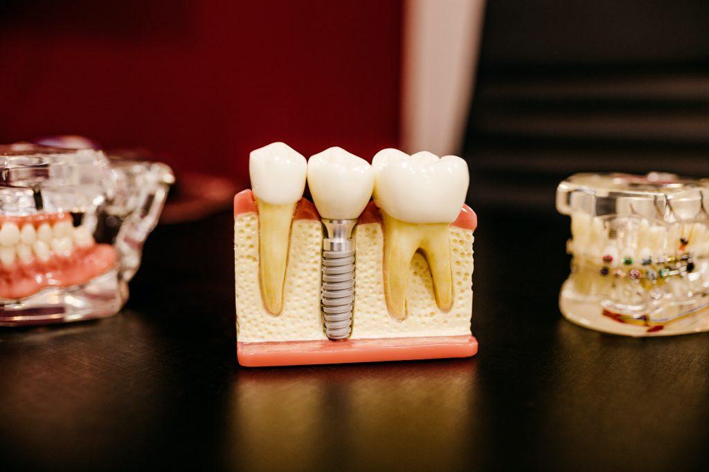 Dental Implants Procedures & Costs Sydney | Dental Pro