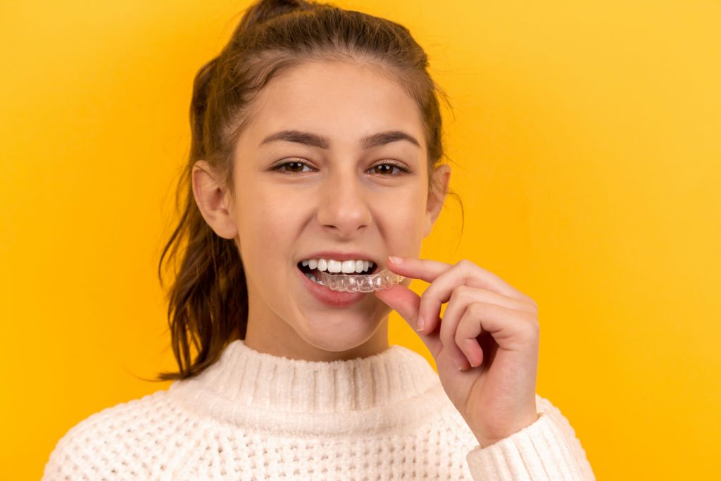 teeth braces | ceramic braces | Dental pro